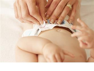 Chăm sóc rốn trẻ sơ sinh bị ướt tại nhà và những dấu hiệu bất thường cần chú ý