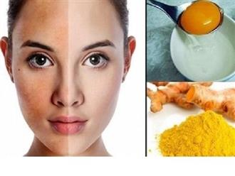 Hướng dẫn cách trị mụn bằng trứng gà hiệu quả ngay từ lần đầu áp dụng