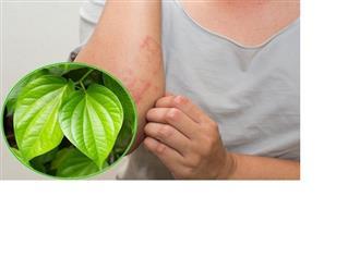 Làm sao để chữa viêm chân lông bằng lá trầu không nhanh và dễ dàng?