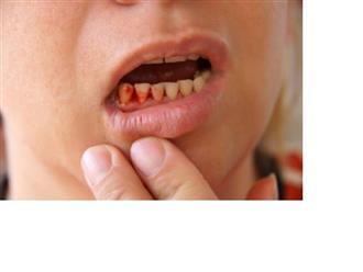 Nguyên nhân, triệu chứng và cách điều trị viêm nha chu hiệu quả nhất