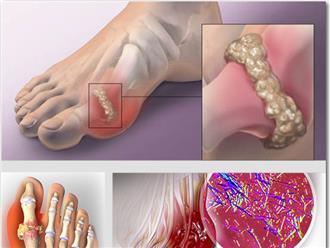 Từ A đến Z thông tin cần nắm về bệnh gút và cách điều trị bệnh hiệu quả