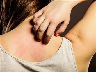 Điểm mặt 8 nguyên nhân khiến bạn ngứa khắp người càng gãi càng ngứa