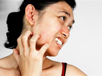 Nổi mẩn đỏ ngứa như muỗi đốt cảnh báo những bệnh nguy hiểm nào?