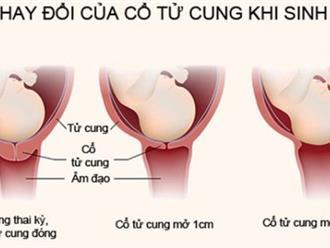 Nhận biết dấu hiệu cổ tử cung mở, kinh nghiệm cho mẹ bầu