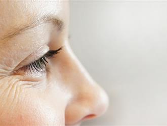 Cách xóa nếp nhăn vùng mắt hiệu quả với 6 công thức tự nhiên