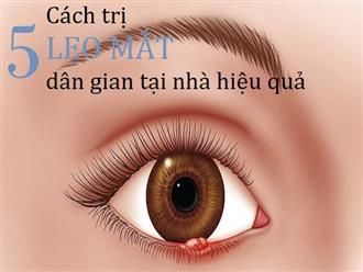 Bật mí 5 cách trị lẹo mắt dân gian hiệu quả tại nhà