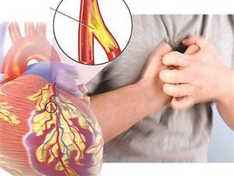 Triệu chứng bệnh mạch vành và cách chữa trị hiệu quả