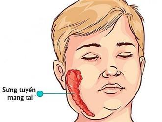 Nguyên nhân, triệu chứng và cách chữa bệnh quai bị