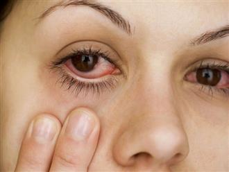 Bật mí cách chữa đau mắt đỏ nhanh nhất và an toàn ngay tại nhà