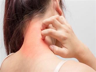 Nguyên nhân, triệu chứng và cách chữa dị ứng thức ăn