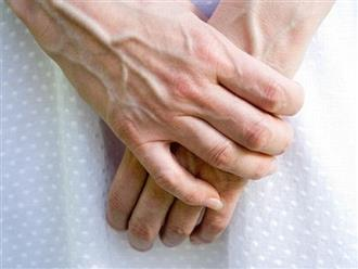 Những điều cần biết về giãn tĩnh mạch tay