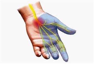 Bệnh hội chứng ống cổ tay là gì, bạn đã biết chưa?