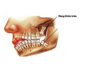 Những dấu hiệu và cách xử lý khi mọc răng khôn hàm trên