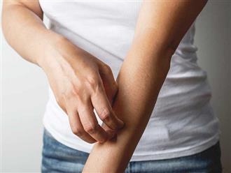 Nguyên nhân và cách điều trị triệu chứng ngứa toàn thân không nổi mẩn