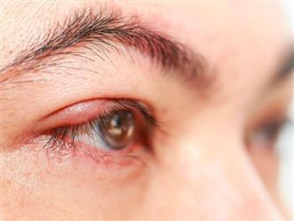 Làm thế nào để hạn chế nổi mụn ở mí mắt trên?