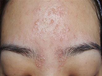 Cẩm nang toàn tập về viêm lỗ chân lông ở mặt mà chị em nên biết