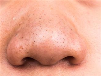 Trị mụn đầu đen – Nguyên nhân và cách điều trị hiệu quả