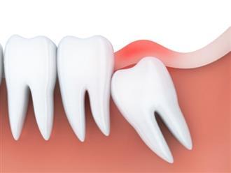 Đau răng khôn nên làm gì để giảm đau nhanh chóng tại nhà?