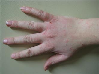 Bệnh chàm da và phương pháp chữa trị đông, tây y