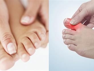Đau các khớp ngón tay và chân nguyên nhân và cách điều trị
