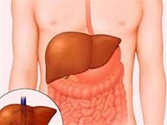 Nóng gan gây ngứa, căn bệnh không của riêng ai vào mùa hè này