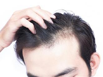 Hiện tượng hói đầu có chữa được không?