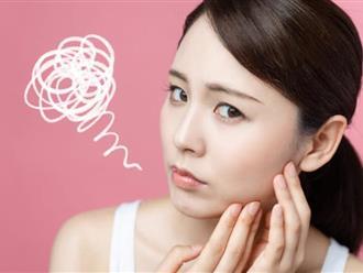 Mẹo trị mụn nội tiết bằng thuốc nam hiệu quả