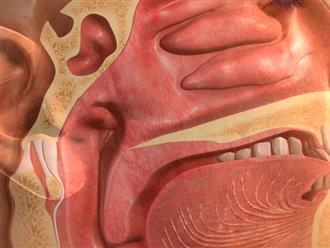 Dấu hiệu, triệu chứng và cách chữa trị ung thư vòm họng
