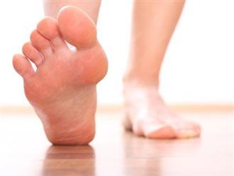 Cách chữa đau gót chân, chấm dứt ngay những cơn đau dai dẳng!