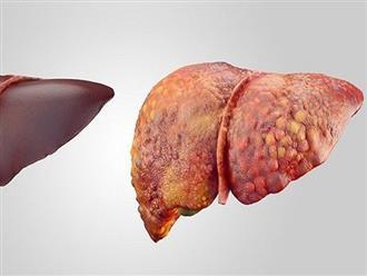 """Bỏ qua 4 triệu chứng này, là bạn đang từng ngày """"phá gan"""" không hay biết"""