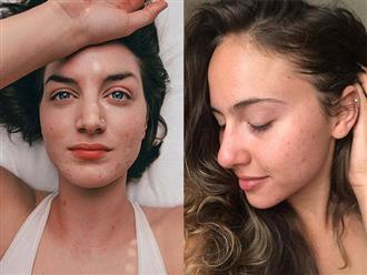 10 cô gái khoe ảnh mặt đầy mụn để chứng minh phụ nữ đẹp khi họ tự tin