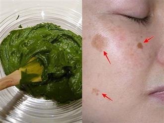 Nếu đang lo lắng vì nám, tàn nhang chi chít khuôn mặt, hãy dùng dầu dừa theo 3 cách này để lấy lại làn da trắng hồng