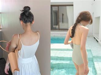 3 tips giúp bạn đánh bay mụn lưng để thỏa sức diện bikini hè này