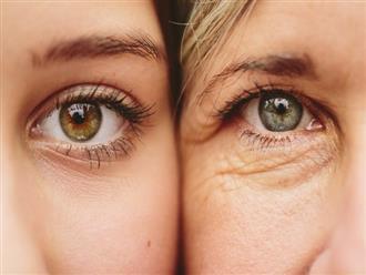 5 thói quen tưởng đơn giản nhưng giúp giảm bớt nếp nhăn dưới mắt cực hiệu quả