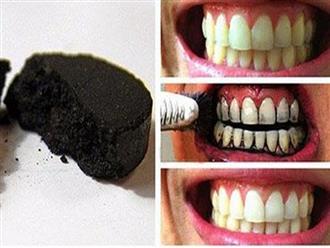 Bật tông nụ cười của bạn với cách làm trắng răng bằng các nguyên liệu đơn giản