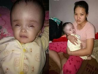 Xót xa mẹ trẻ có con gái 7 tháng tuổi đầu phình to vì mắc não úng thủy: 'Ước gì có thể gánh bệnh tật thay con'