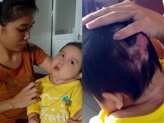 Xót thương bé gái 16 tháng tuổi teo não, mất nhận thức, tay chân co quắp chỉ vì côn trùng cắn