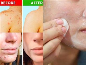Mụn trứng cá chi chít trên da mặt hay sau lưng đều được trị tận gốc nhờ 6 mẹo đơn giản này