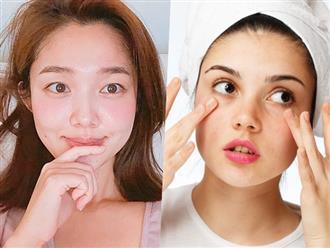 Cách chăm sóc da theo chu kỳ kinh nguyệt mà bạn gái nào cũng nên biết