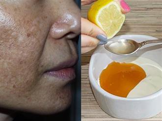 Trị tận gốc nám da trong vòng 2 tuần nhờ cách dùng mật ong 'dễ như chơi' này