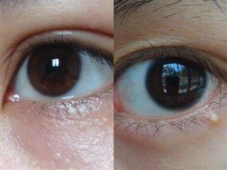 Cách loại bỏ các hạt chất béo mọc quanh mắt gây khó chịu và xấu xí