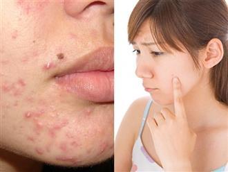 Ăn nhiều đồ nóng trong ngày Tết mà không biết 5 cách ngăn ngừa mụn này, mặt sần sùi là đúng