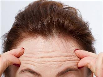 Nếp nhăn giữa trán 'cứng đầu' đến mấy cũng mờ hẳn giúp da mịn màng trở lại nhờ 5 nguyên liệu rẻ tiền này