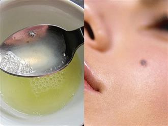 Cần gì đến spa, giã nhuyễn 1 múi tỏi khô rồi thoa thế này, nốt ruồi trâu cũng bị tẩy sạch sành sanh lại an toàn gấp trăm lần đốt laser