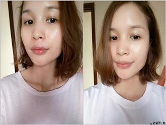 Chiều lòng bạn trai dùng kem trộn, cô gái này đã mất 2 năm để phục hồi da của mình