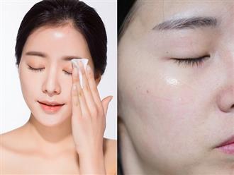 Lời khuyên bổ ích từ chuyên gia làm đẹp nổi tiếng giúp phụ nữ xóa tan nỗi lo khô sạm, bong tróc và da nhăn nheo vào mùa đông