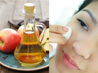 Công thức làm đẹp tự nhiên giúp mẹ bầu trị sạch mụn, duy trì làn da khỏe mạnh lại không lo ảnh hưởng tới thai nhi