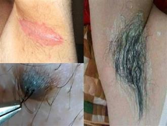 Cứ tiếp tục dùng nhíp nhổ lông nách đi, bạn sẽ phải gánh chịu 5 hậu quả kinh hoàng này, đáng sợ nhất là ung thu vú