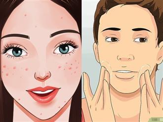 Dùng đủ cách để trị mụn cho da dầu nhưng mãi không dứt, chắc chắn bạn đã mắc phải 3 điều này