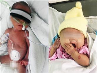 Hành trình cứu con gái sinh non 6 tháng, chỉ nặng 660 gram khỏi tay tử thần của đôi vợ chồng hiếm muộn 12 năm